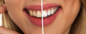 Consejos para tener una buena higiene bucodental y una sonrisa más blanca que antes