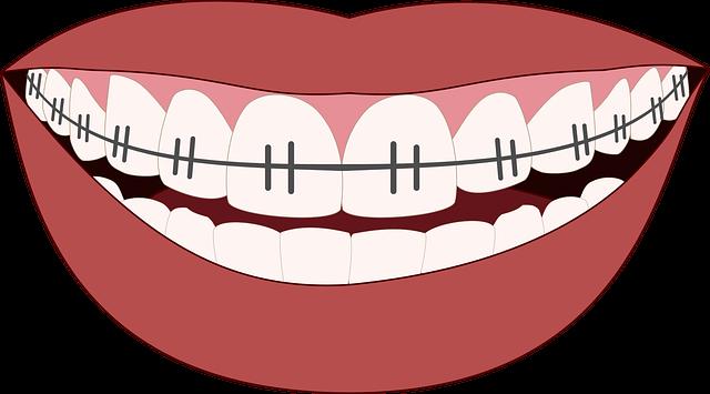 En Asia las personas se ponen ortodoncia falsa para aparentar tener dinero