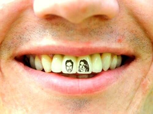 Hacerse tatuajes en los dientes es una curiosidad sobre la salud bucodental